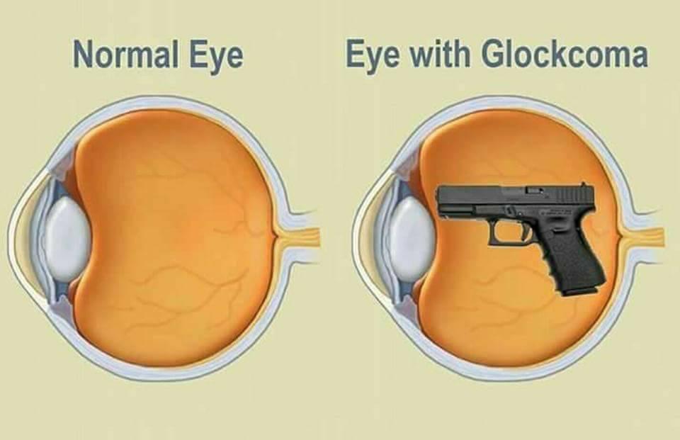 Glockcoma-gun-meme.jpg